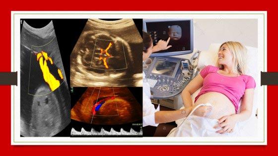Fetal Color doppler